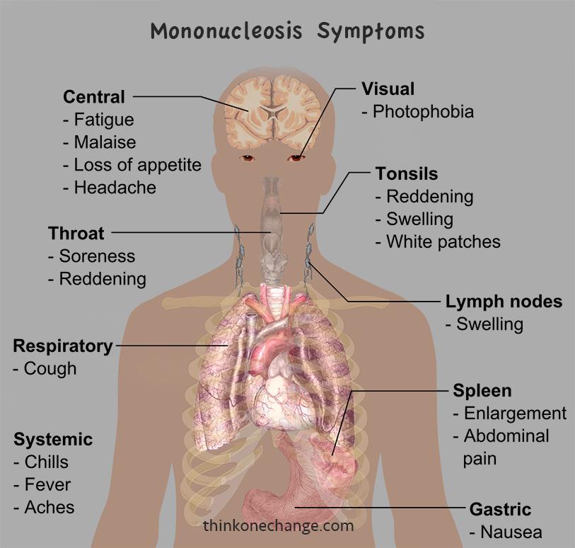 main-symptoms-of-mononucleosis